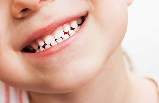 Child's healthy smile after tooth colored filling