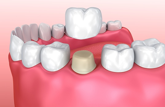 Animated metal free dental crown placement